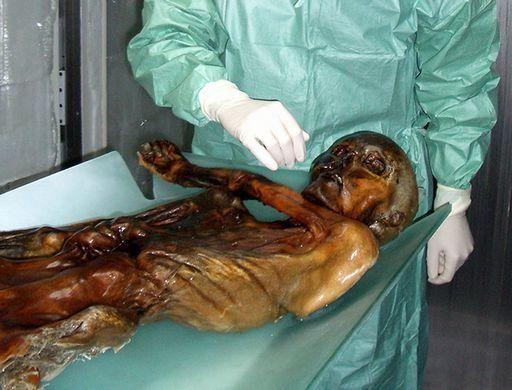 Homo Mortuum